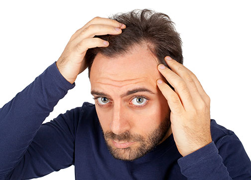 Common Causes Of Hair Loss In Men